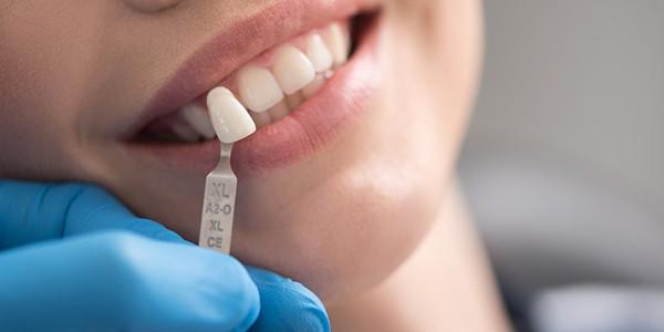 Implantes dentales en Madrid centro