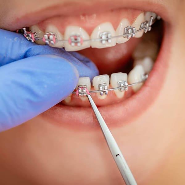 Ortodoncia infantil en Madrid