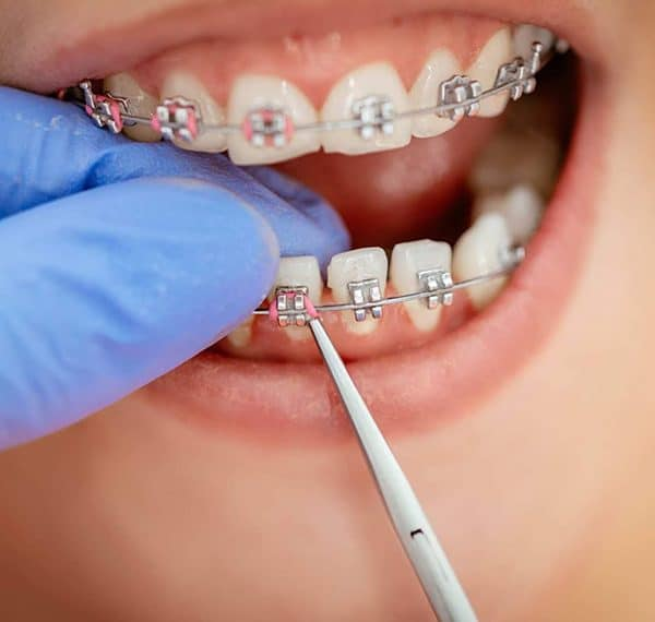 Ortodoncia infantil en Vicalvaro