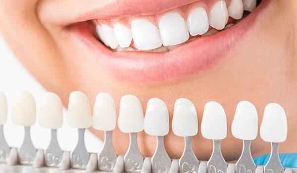 Prótesis dentales en Madrid centro